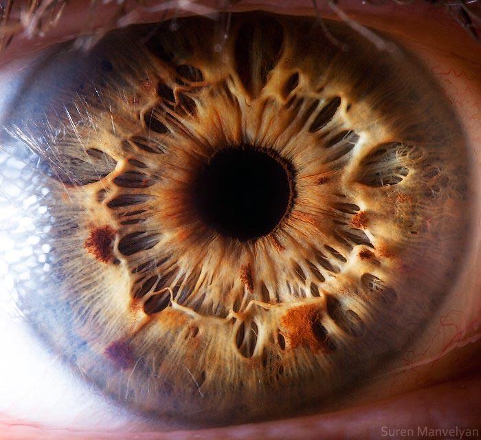 как выглядит здоровый глаз